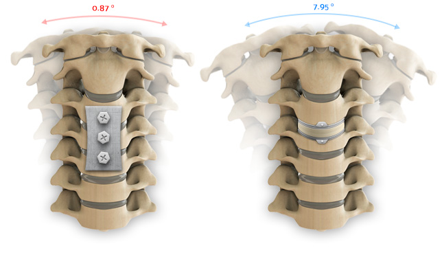 Range of motion comparison between a cervical fusion and a artificial disc